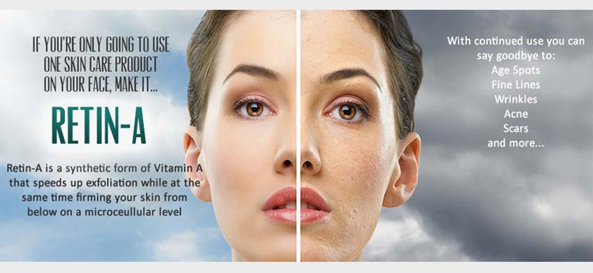 Retin-A the only ones scientifically shown to improve skin appearance.